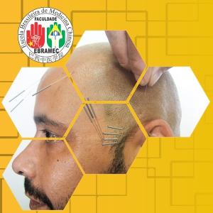 Cranioacupuntura Yamamoto – YNSA