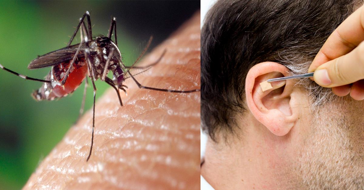chikungunya Auriculoterapia auxilia em casos de Chikungunya