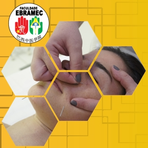 Acupuntura Estética aplicada a Dermatologia